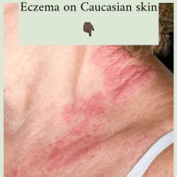 caucasian-skin
